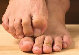 Why Your Feet Itch all The Time Especially at Night ...