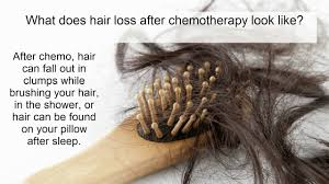 hair loss from chemotherapy what is it who gets it how do we treat it you
