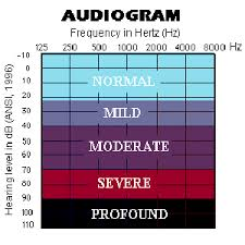 Type And Degree Of Hearing Loss