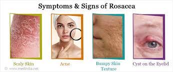 Treatment for dry skin acne  lesen sie auch: Rosacea Causes Types Symptoms Diagnosis Treatment Prevention