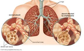 Respiratory Disease Fact Chart Respiratory Disease Definition Causes Major Types