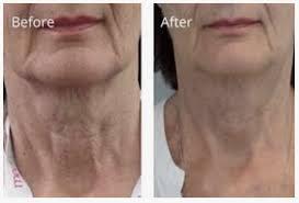 treatment-profhilo - Dr Yusra
