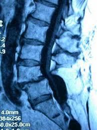 Resultado de imagen de abultamiento dinámico del disco en la columna lumbar