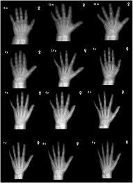 Bone Age Wrist Chart Predicting Height By Bone Age An Inexact Science