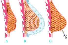Lipofillling, aumento de pecho con grasa