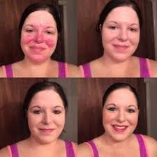 she has rosacea look at the awesome coverage youniques foundations give you mineral