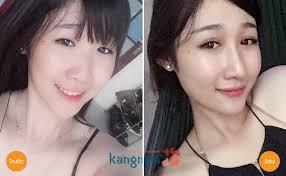 Kết qua trước và sau khi bấm mí mắt