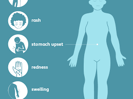 angioedema signs symptoms and
