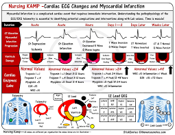 Telemetry Heart Rate Chart St Elevations Monitoring For Infarction Stemi