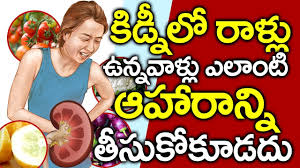 Kidney Patient Diet Chart In Telugu Foods To Avoid For Kidney Stones In Telugu I Kidney Stone I Food To Avoid Good Health And More