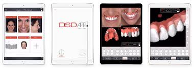 Digital Smile Design App The Ideal Timeline Of A Digital Smile Design Patient