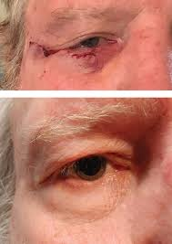 a close look at common lid lesions