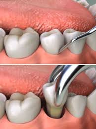 teeth setting tooth extraction in san diego bajarsdental com