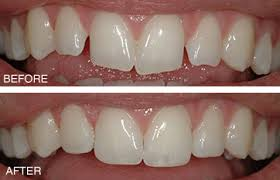 teeth reshaping before and after. cosmetic contouring teeth reshaping before and after m