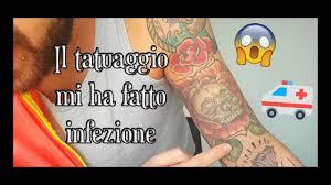 Il Tatuaggio Mi Ha Fatto Infezione Tattoo Infection The Bonnie