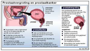 symptomen prostaatcarcinoom
