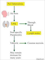Pathophysiology Of Tuberculosis In Flow Chart Mycobacterium Tuberculosis Part 4 Afb Stain Acid Fast
