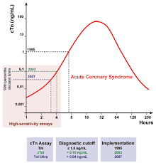 Troponin Levels Chart High Sensitivity Troponin Testing Rebel Em Emergency