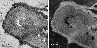 dark field microscopy publication summary dark field microscopy makes nanoparticles light