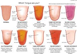 Tongue Analysis Chart Tongue Diagnosis Chart Employed By Acumedic Centre London