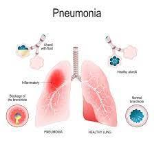 pneumonia guide causes symptoms and