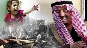 Image result for سازمان ملل شکست آلسعود در جنگ یمن را اعلام کرد