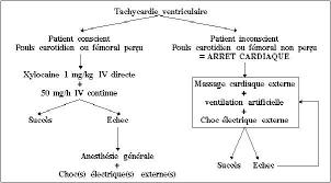 la tachycardie