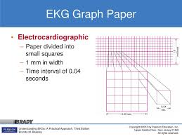 5 The Electrocardiogram Ppt Download