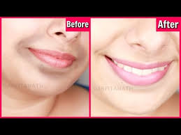 remove dark black patches around mouth