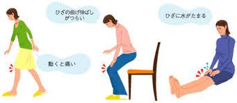 🐾膝に水がたまる原因について🐾
