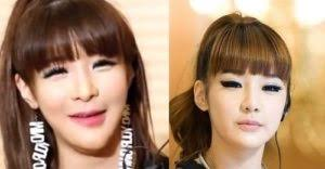 korean male artist plastic surgery before and after