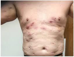 subcutaneous adipose tissue diseases