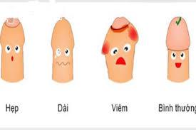 bộ phận sinh dục nam bị ngứa