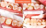 Какой зуб должен быть под коронкой 78