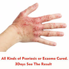 Strong Effect Massage Cream Psoriasis Dermatitis Eczema Treatment ...