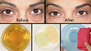 How to Get Rid of Puffy Eyes, Swollen Eyelids & Dark Circles - YouTube