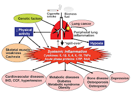 chronic obstructive pulmonary disease effects beyond the lungs png
