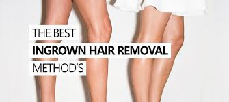 how to get rid of ingrown hair useful