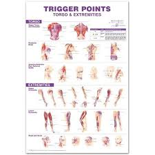 Trigger Points Giant Chart