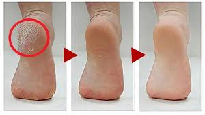 how to get rid of calluses on feet 6 natural home remes to get rid of calluses on feet you