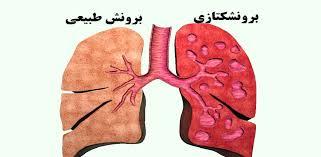 بیماری برونشکتازی چیست؟