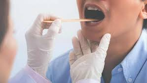 white spots on tonsils causes