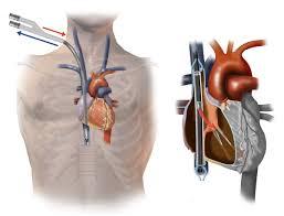 Echo Guided Bi Caval Dual Lumen Ecmo Catheter Insertion