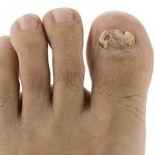 nail fungus is an extremely mon plaint it makes toenails thick yellow and ugly infected nails may be so thick that t them is a c