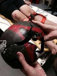porqué debes usar casco