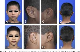 Figure 13 From Stahls Ear Correction Synergistic Use Of Cartilage