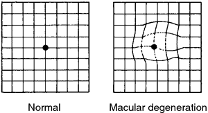 Age Related Macular Degeneration Definition Of Age Related