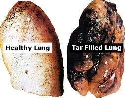 Image result for smoking effect on respiratory system images