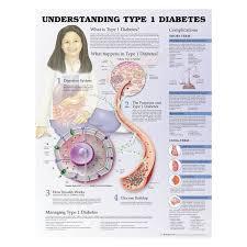 09 31 9755 Understanding Type 1 Diabetes Chart