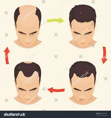Male Pattern Baldness Stages Interesting Design Inspiration